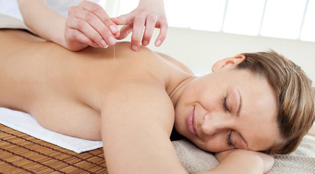 Akupunktur for å bli gravid